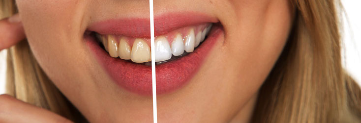Zahn-Bleaching beim Zahnarzt in Bern