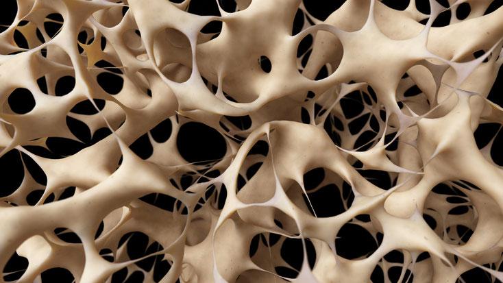 ParoSphère | Ostéoporose et parodontite. Crédit photo: © Sebastian Kaulitzki.