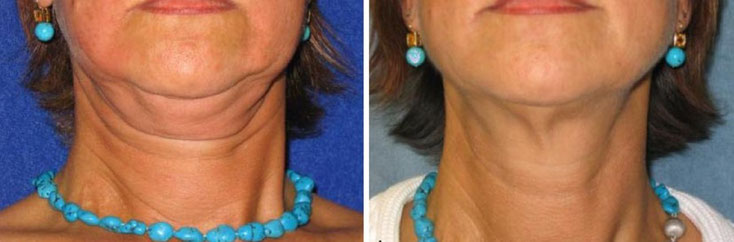 Kryolipolyse bei Doppelkinn, rechts Zustand nach zwei Behandlungen