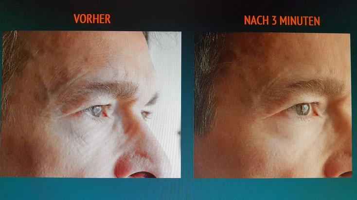 Handy-Fotos des Tests im Bereich Unterlis/Wange bei Dr. Lüthy selbst - die Fältchen blieben über 8 Stunden weg!