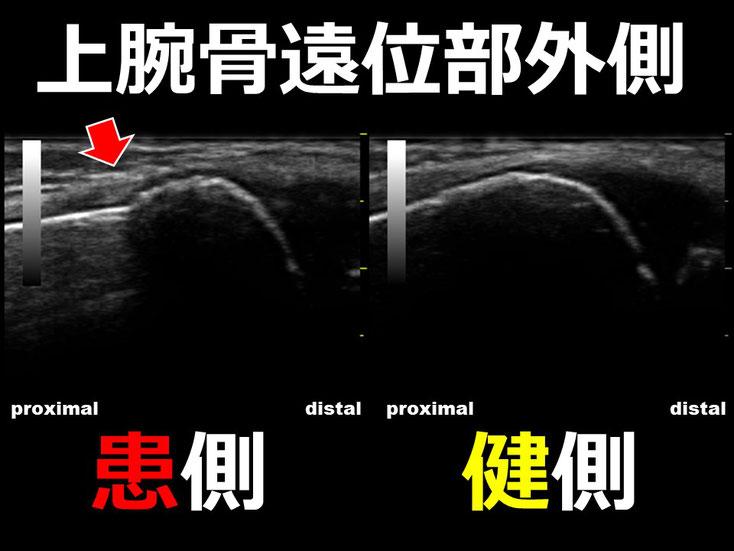 豊田市 接骨院 おおつか接骨院 上腕骨顆上骨折 超音波画像2