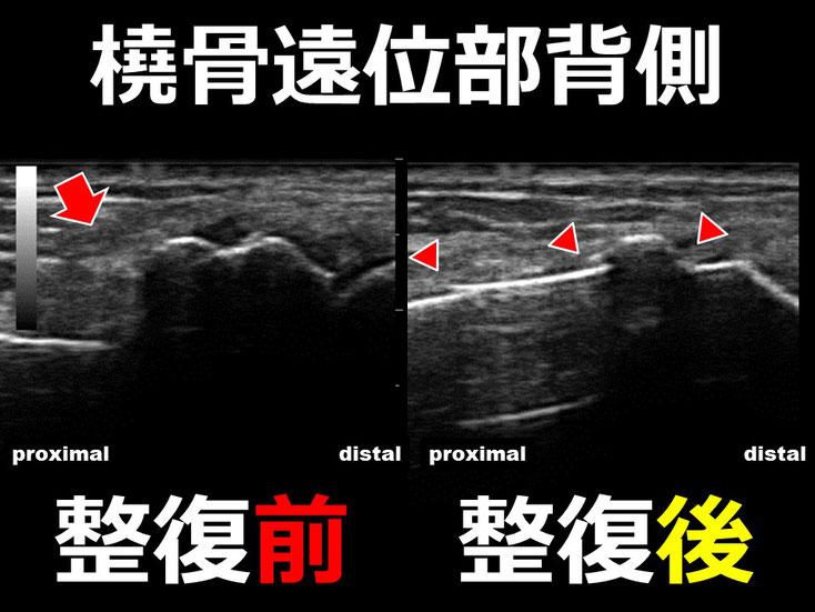 橈骨遠位端骨折 整復後1 超音波画像 エコー画像 豊田市 おおつか接骨院