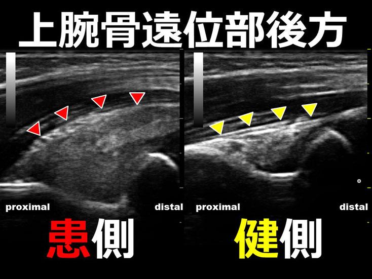 豊田市 接骨院 おおつか接骨院 上腕骨顆上骨折 超音波画像