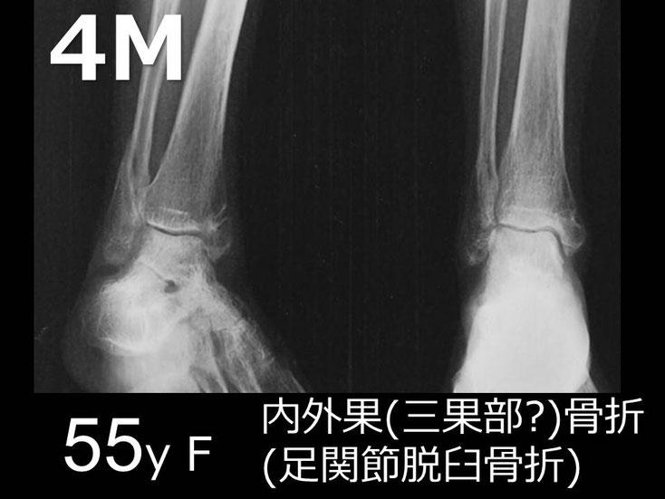 豊田市 おおつか接骨院 右足関節脱臼骨折 レントゲン 4か月