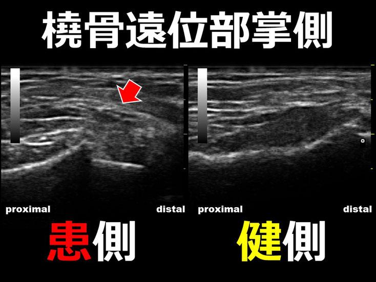 橈骨遠位端骨折3 超音波画像 エコー画像 豊田市 おおつか接骨院