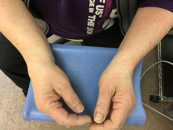 橈骨遠位端骨折の外観写真1 おおつか接骨院 豊田市