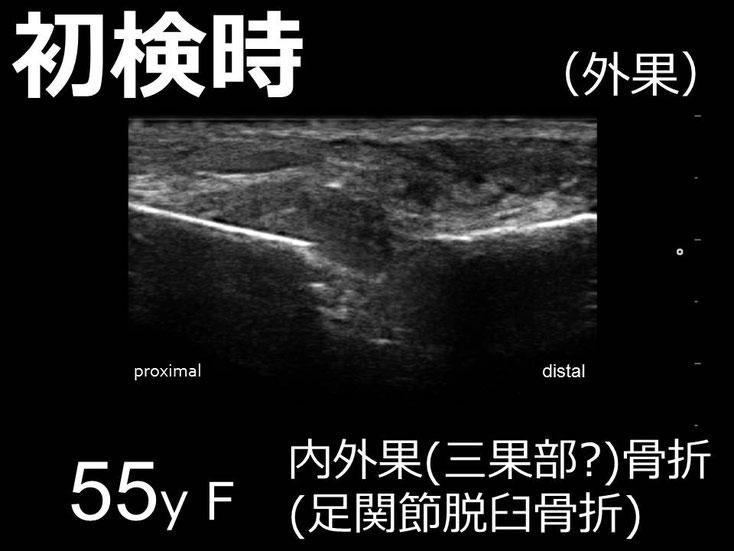 豊田市 おおつか接骨院 右足関節脱臼骨折 超音波画像 外果