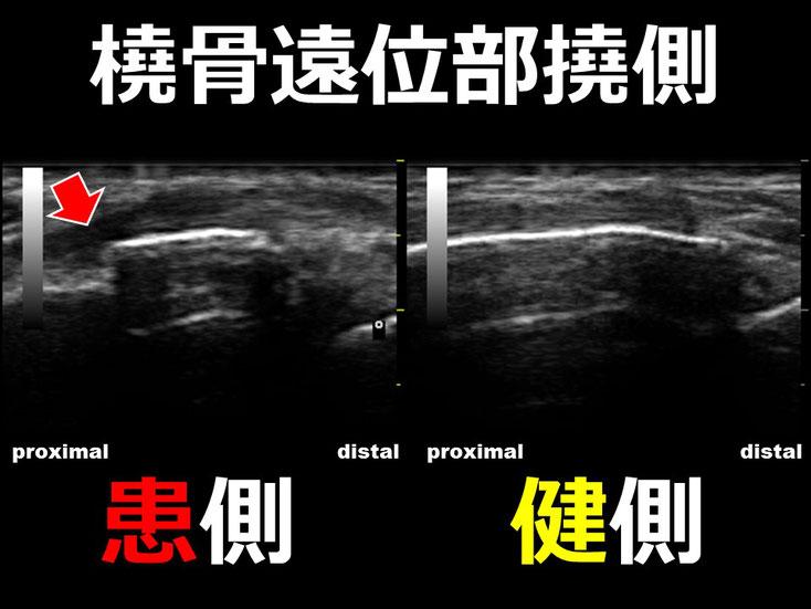 橈骨遠位端骨折2 超音波画像 エコー画像 豊田市 おおつか接骨院