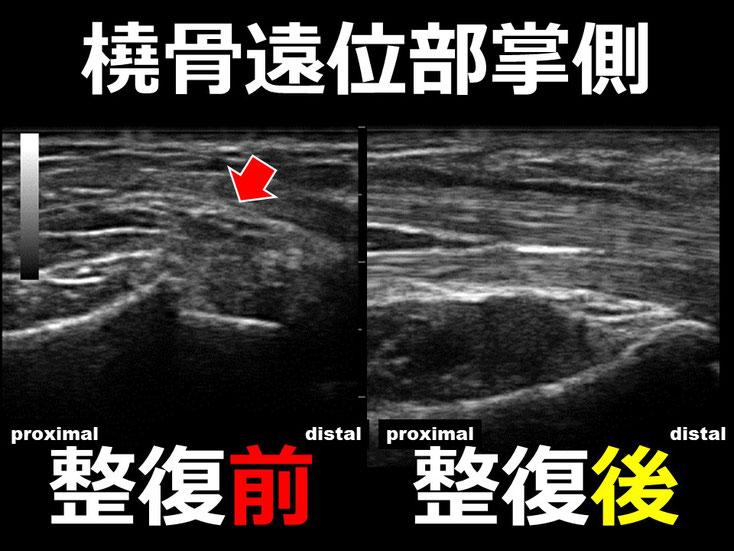 橈骨遠位端骨折 整復後3 超音波画像 エコー画像 豊田市 おおつか接骨院