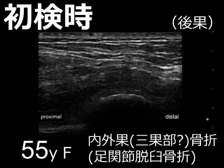豊田市 おおつか接骨院 右足関節脱臼骨折 超音波画像 後果