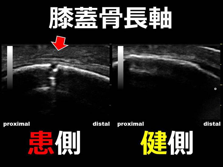 豊田市の接骨院 おおつか接骨院 膝蓋骨骨折 超音波画像