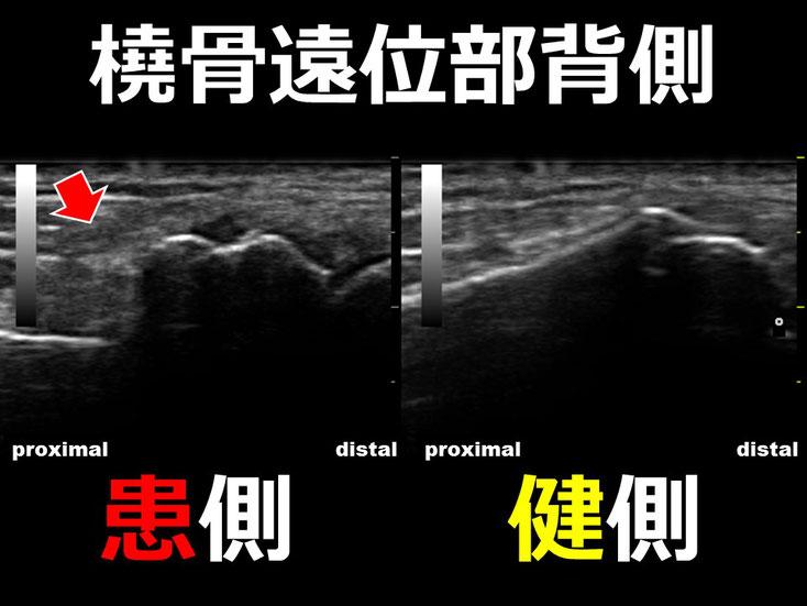 橈骨遠位端骨折1 超音波画像 エコー画像 豊田市 おおつか接骨院