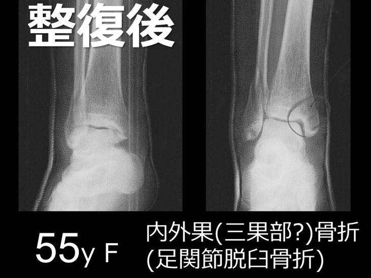 豊田市 おおつか接骨院 右足関節脱臼骨折 レントゲン 初診