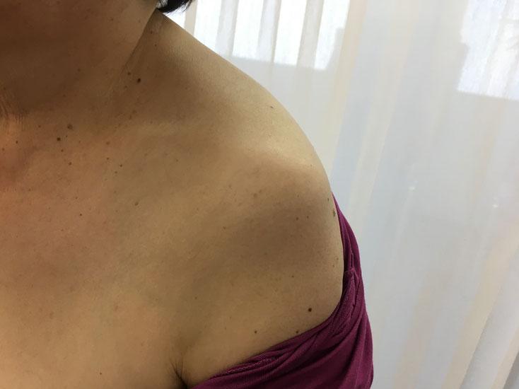 左肩関節脱臼の外観写真 おおつか接骨院 豊田市