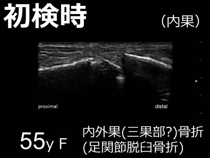 豊田市 おおつか接骨院 右足関節脱臼骨折 超音波画像 内果