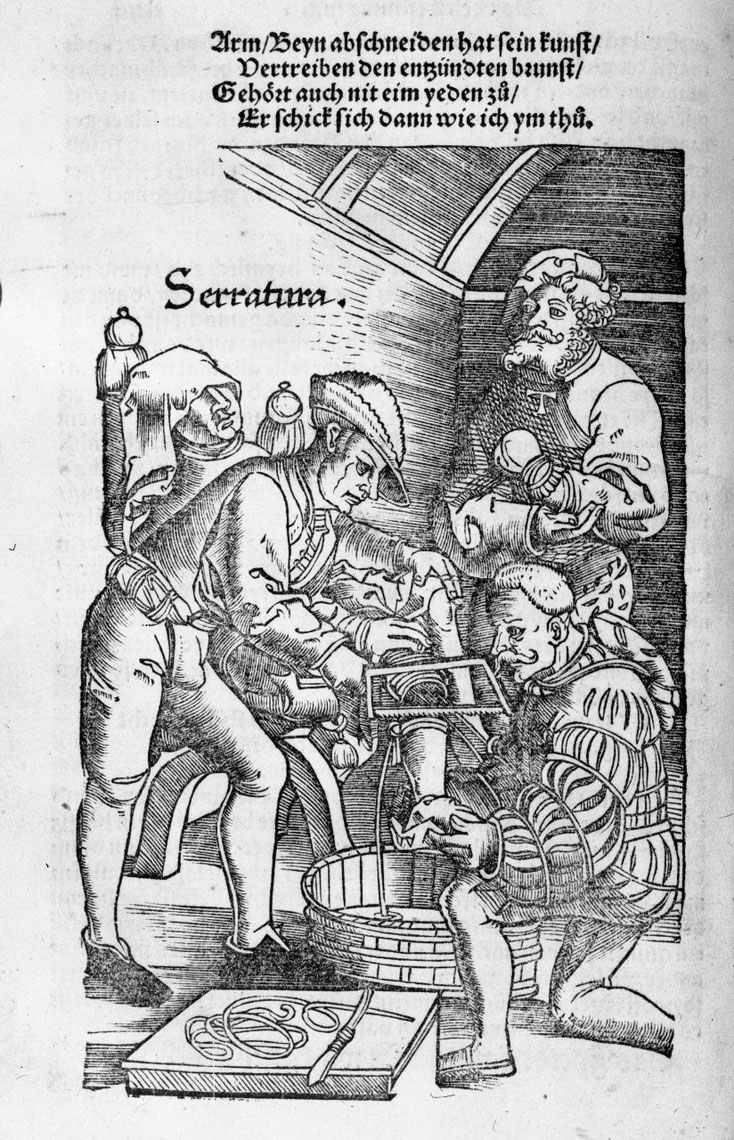 Hans von Gersdorff publie en 1517 à Strasbourg le «Feldtbuoch der wundartzney » ou Manuel de chirurgie militaire