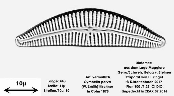 Bild 28 Diatomee aus dem Lago Maggiore/Gerra Schweiz, Art vermutlich Cymbella parva (W.Smith) Kirchner In Cohn 1878
