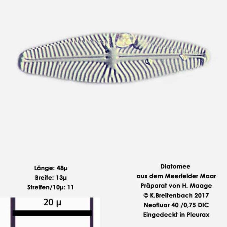 Bild 7 Diatomee aus dem Meerfelder Maar in der Eifel, Art: unbekannt