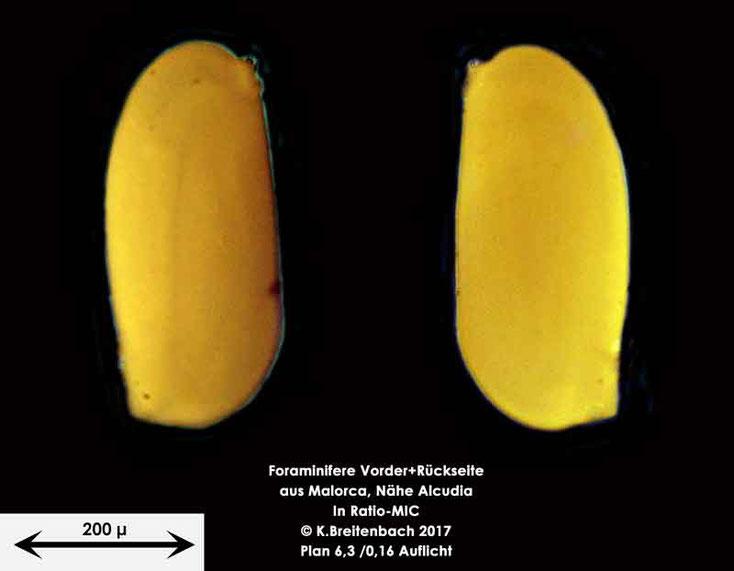 Bild 7 Foraminiferen aus Mallorca; Gattung: Quinqueloculina spec.