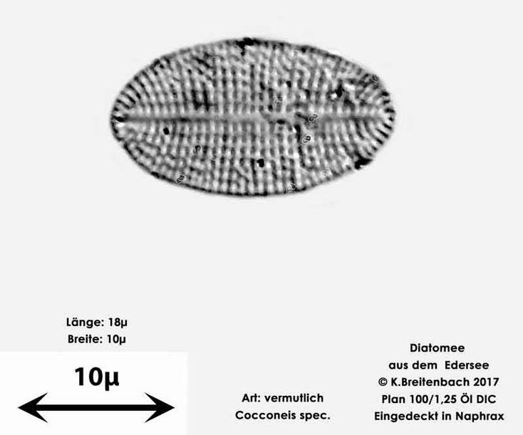 Bild 3 Diatomeen aus dem Edersee, Art: vermutlich Cocconeis spec.