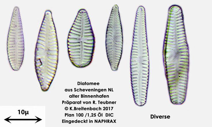 Bild 11 Diatomeen aus Scheveningen NL, Art diverse nicht bestimmt