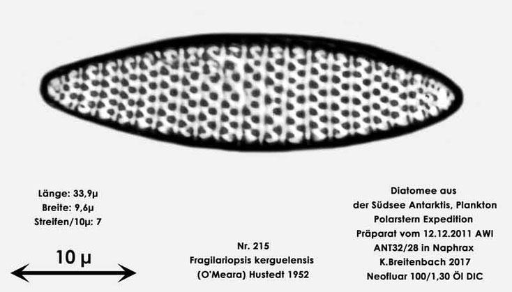 Bild 5 Diatomee aus dem anarktischen Ozean Präparat: ANT32/28; Art: Fragilariopsis kerguelensis (O'Meara) Hustedt 1952