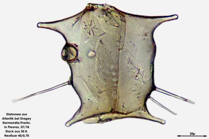 Diatomee aus dem Atlantik bei Draghey de Monton (Normandie). Art: Odontella mobiliensis (Bailey) Grunow 1884