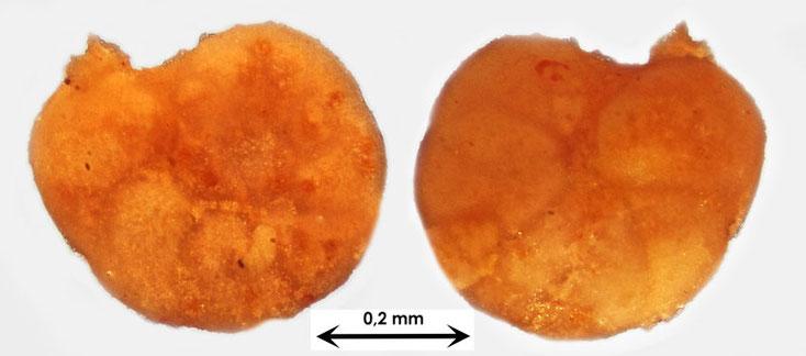 Foraminifere aus Waldlaubersheim vermutlich Cibicedes spec.