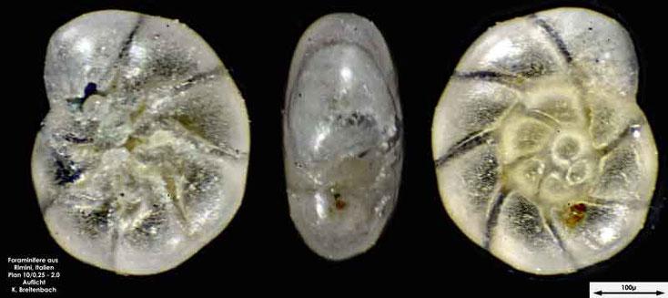 Foraminifere aus Strandsand aus Rimini; Gattung: Ammonia sp. eventuell (Ammonia beccarii (Linnaeus, 1758))