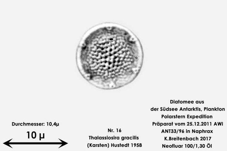 Bild 24 Diatomee aus dem anarktischen Ozean Präparat: ANT33/96; Art: Thalassiosira gracilis (Karsten) Hustedt 1958