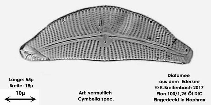 Bild 6 Diatomeen aus dem Edersee, Art: vermutlich Cymbella spec.