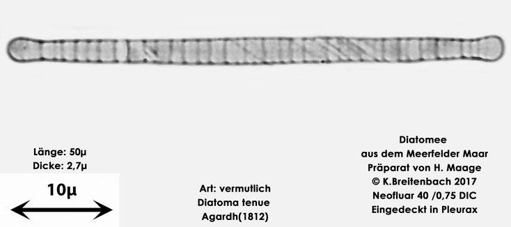 Bild 15 Diatomee aus dem Meerfelder Maar in der Eifel, Art: vermutlich Diatoma tenue Agardh (1812)