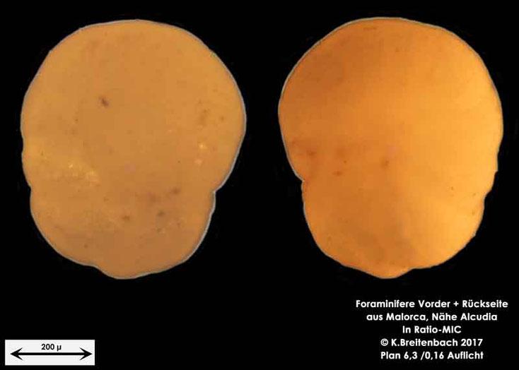 Bild 14 Foraminiferen aus Mallorca; Gattung: Unbestimmt
