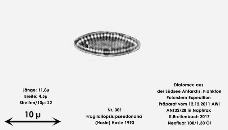 Bild 15 Diatomee aus dem anarktischen Ozean Präparat: ANT32/28; Art: Fragilariopsis pseudonana (Hasle) Hasle 1993