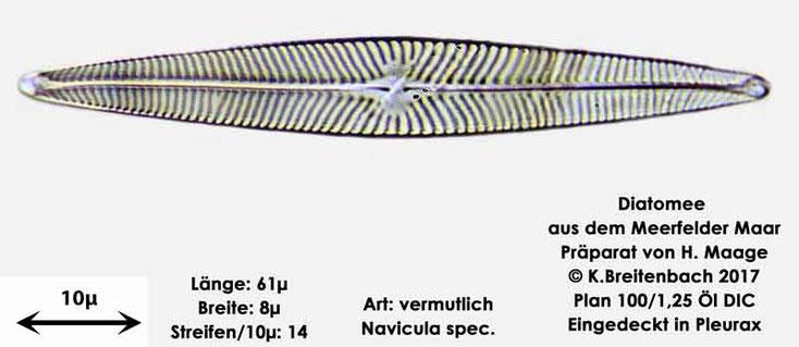 Bild 20 Diatomee aus dem Meerfelder Maar in der Eifel, Art: vermutlich Navicula spec.