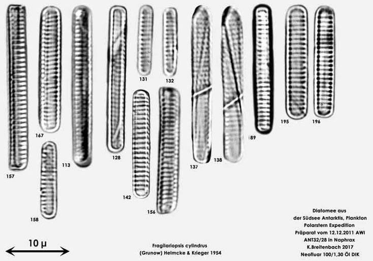 Bild 17 Diatomee aus dem anarktischen Ozean Präparat: ANT32/28; Arten: Fragilariopsis cylindrus (Grunow) Helmcke & Krieger 1954