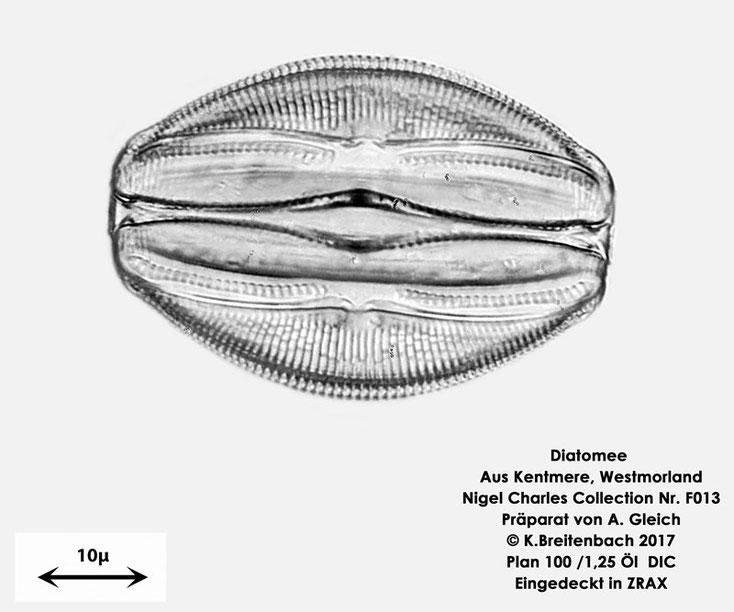 Bild 10 Diatomeen aus Kentmere Westmoreland UK Art: Unbekannt