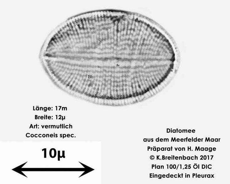 Bild 11 Diatomee aus dem Meerfelder Maar in der Eifel, Art: vermutlich Cocconeis spec.
