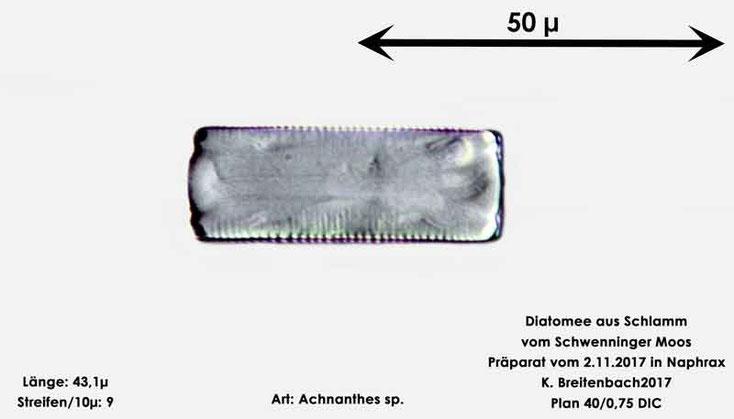 Bild 2 Diatomeen aus dem Schwenninger-Moos Gattung, Gürtelansicht von Achnanthes sp.