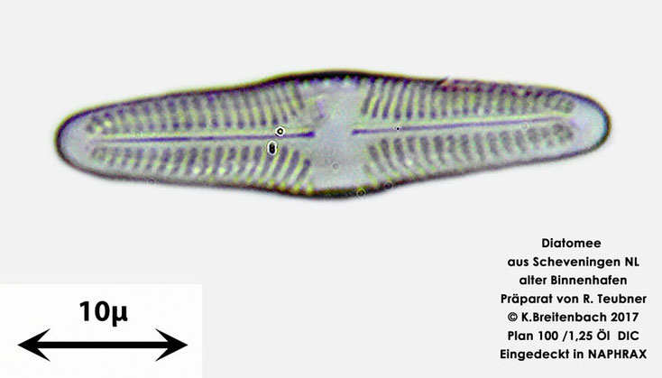 Bild 14 Diatomeen aus Scheveningen NL, Art unbekannt, nicht bestimmt