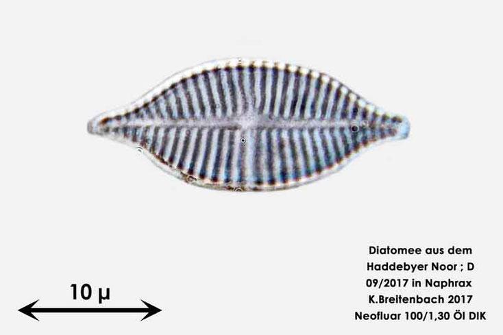 Bild 29 Diatomee aus dem Haddebyer Noor in Schleswig Holstein; Gattung: wurde von mir nicht bestimmt
