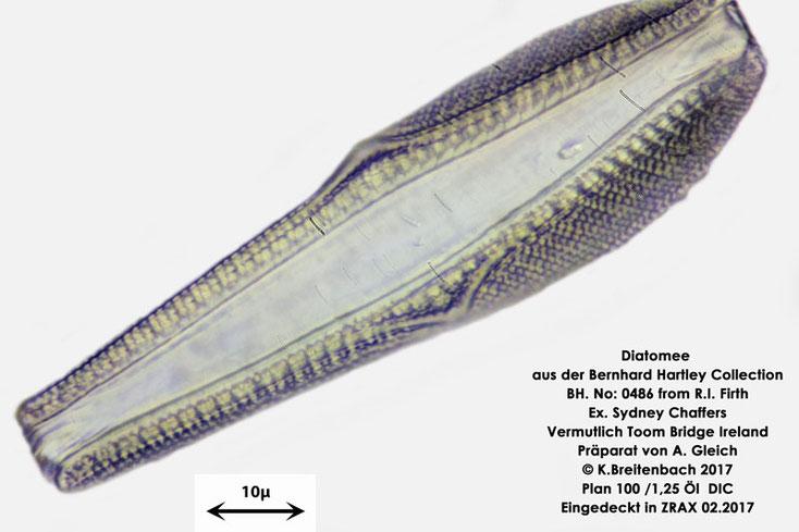 Bild 24 Diatomee aus Toomebridge Irland, Süßwasser Art: unbekannt