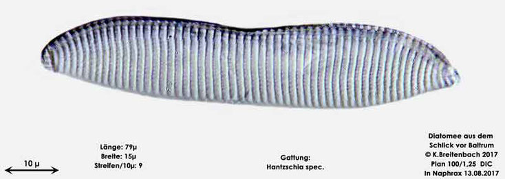 Bild 9 Diatomee aus dem Watt vor Baltrum; Gattung: Hantzschia spec.