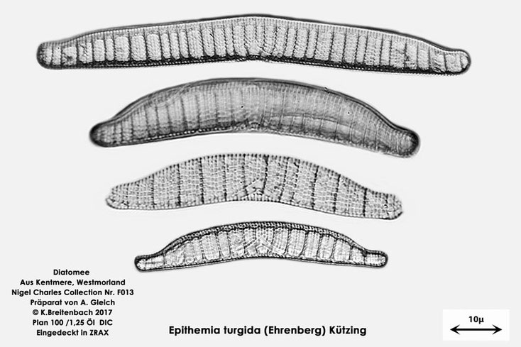 Bild 2 Diatomeen aus Kentmere Westmoreland UK Art: vermutlich Epithemia turgida (Ehrenberg) Kützing