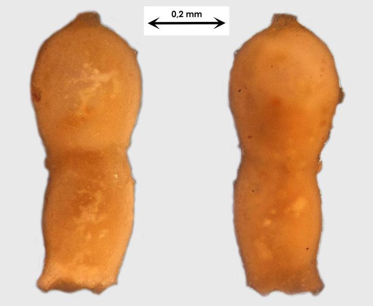Foraminifere aus Waldlaubersheim vermutlich Nodosaria spec.