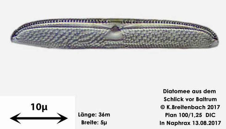 Bild 24 Diatomee aus dem Watt vor Baltrum; Gattung konnte von mir nicht bestimmt werden