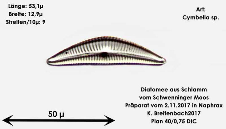 Bild 4 Diatomeen aus dem Schwenninger-Moos Gattung, Cymbella sp.