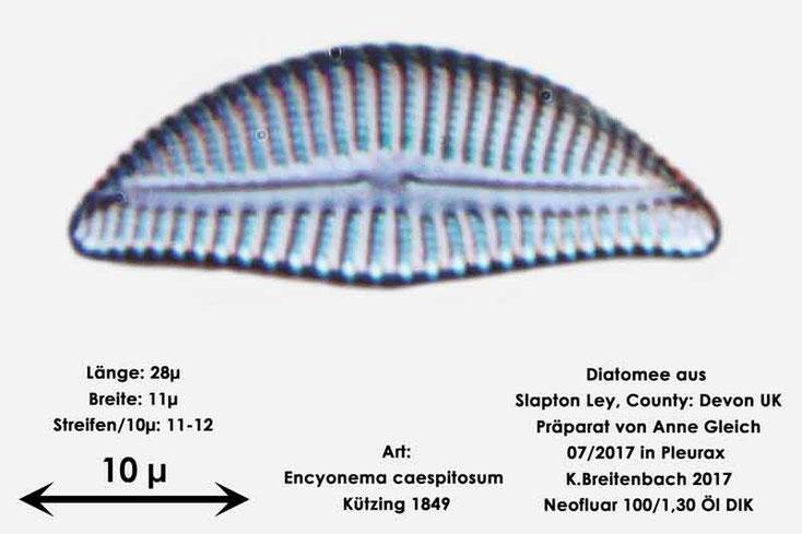 Bild 16 Diatomeen aus Slapton Ley, Devon UK; Art: Encyonema caespitosum Kützing 1849