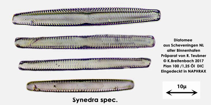 Bild 10 Diatomeen aus Scheveningen NL, Art vermutlich Synedra spec.