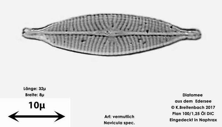 Bild 9 Diatomeen aus dem Edersee, Art: vermutlich Navicula spec.